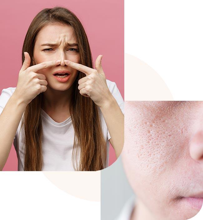 acne_5