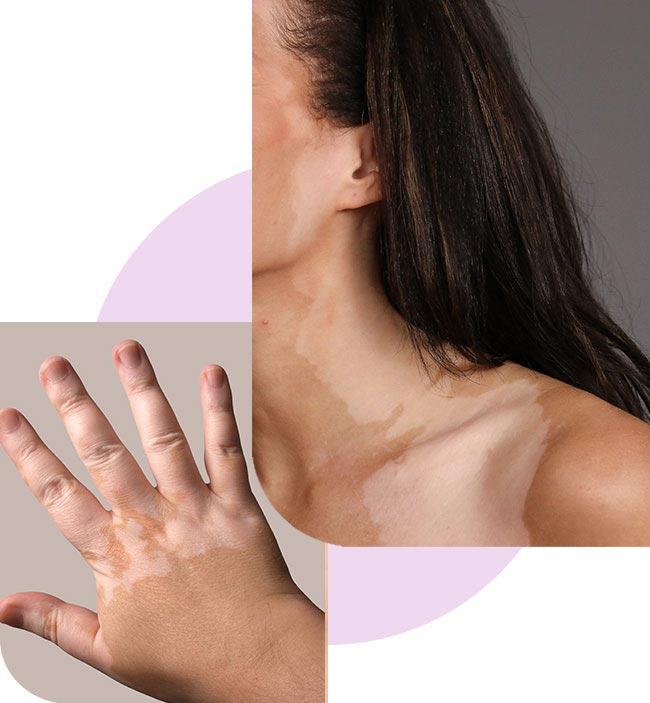 vitiligo-tratamiento-elysium